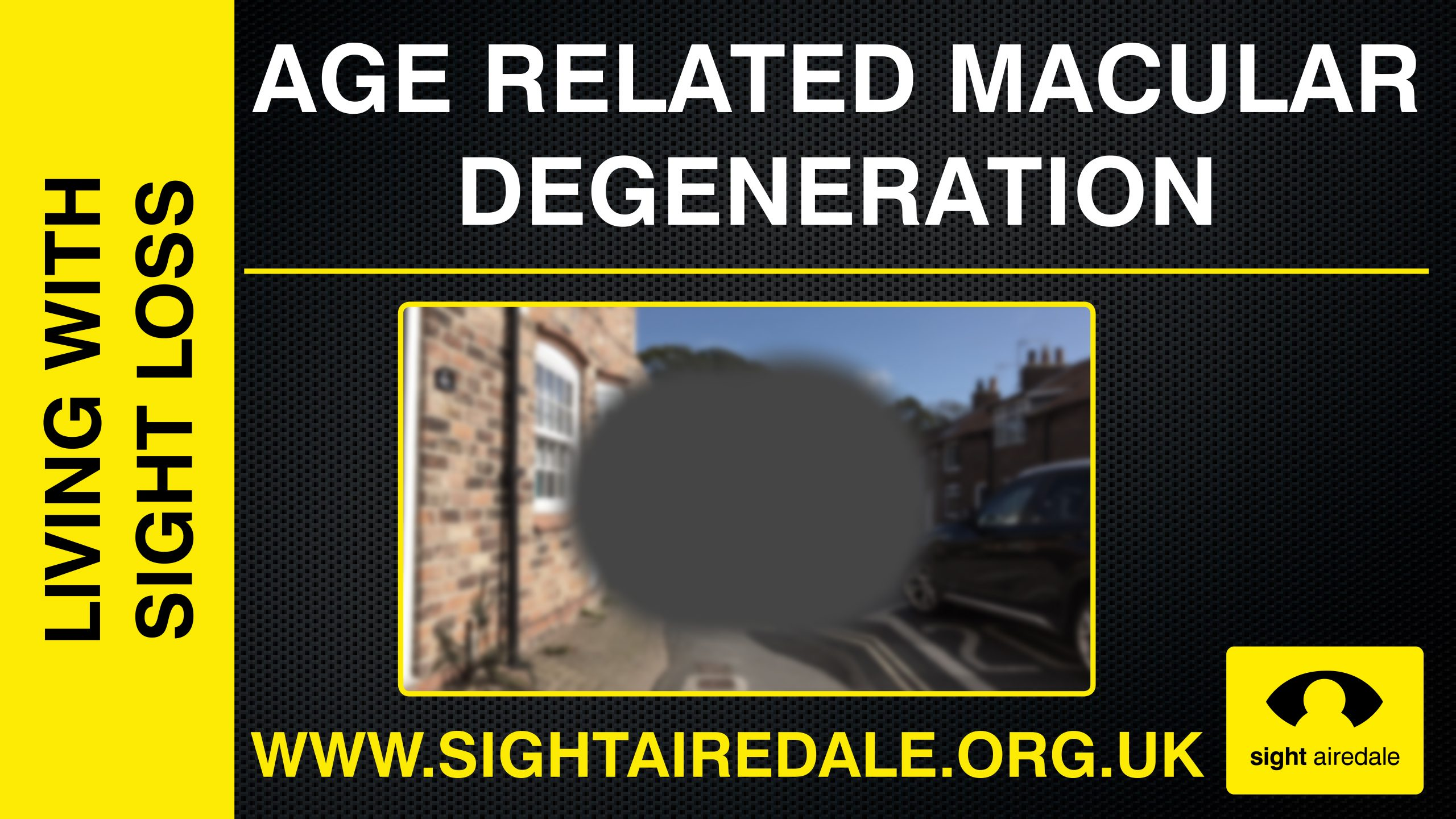 What do blind people see? - Macular Degeneration